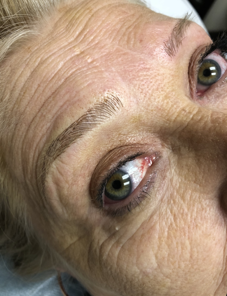 Cancer Patients Deserve Microblading Cincinnati Better Brows